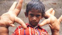 """8岁男孩拥有世界最大的""""巨手"""",上学都成了问题!"""