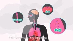 雾霾到底有什么危害?32秒告诉你答案~